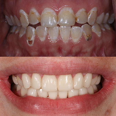 An actual cosmetic dentistry patient of Impressive Smiles - a part of our Arlington Heights dental services