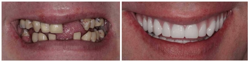 Before and after dental implants case in Arlington Heights
