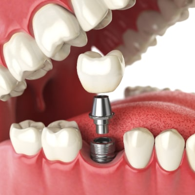 graphic of dental implants offered in arlington heights il implant dentistry service
