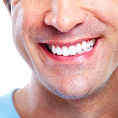 close-up of male smile with cosmetic dentistry bonding procedure