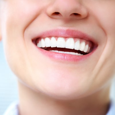 cosmetic dentistry teeth whitening patient smiling