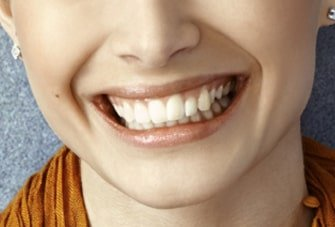 image example of a closeup smile for the free virtual consultation with dentist, Dr. Meena Barsoum from Arlington Heights, IL